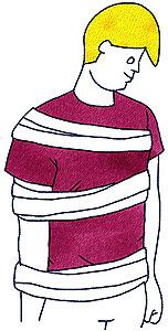 肩の骨折や脱臼の固定方法