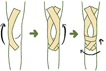 ヒザを傷めた場合のテーピングテープによる固定イラスト