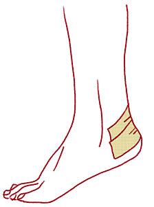 靴ずれの際のテーピングの貼り方イラスト