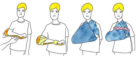前腕・手首の固定方法